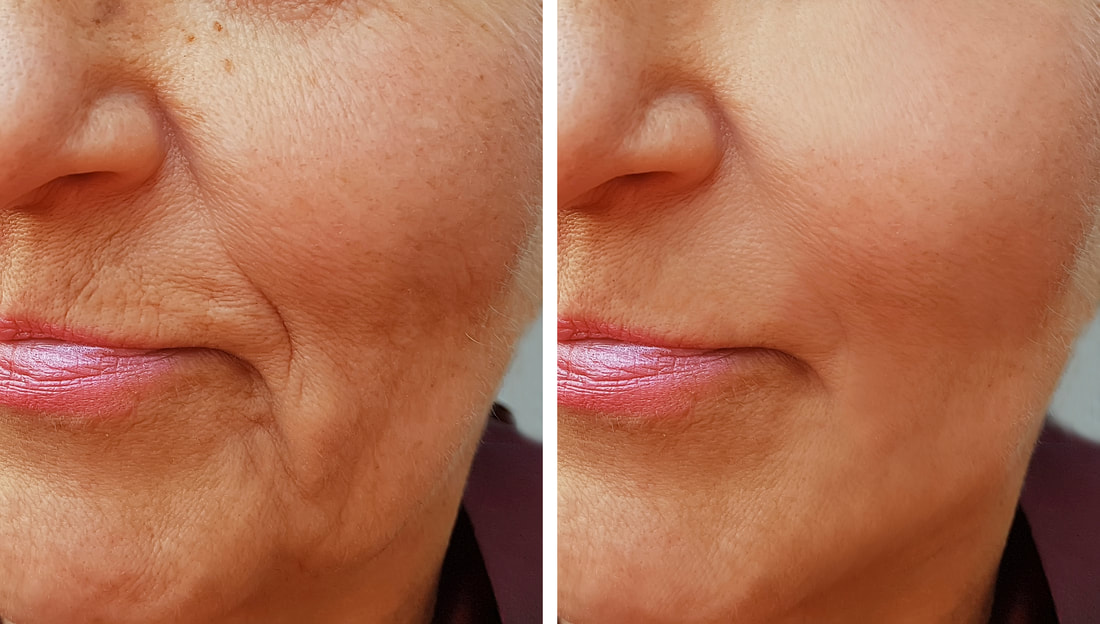 marionette lines soften dramatically after treatment - Dermatology Associates of SWLA